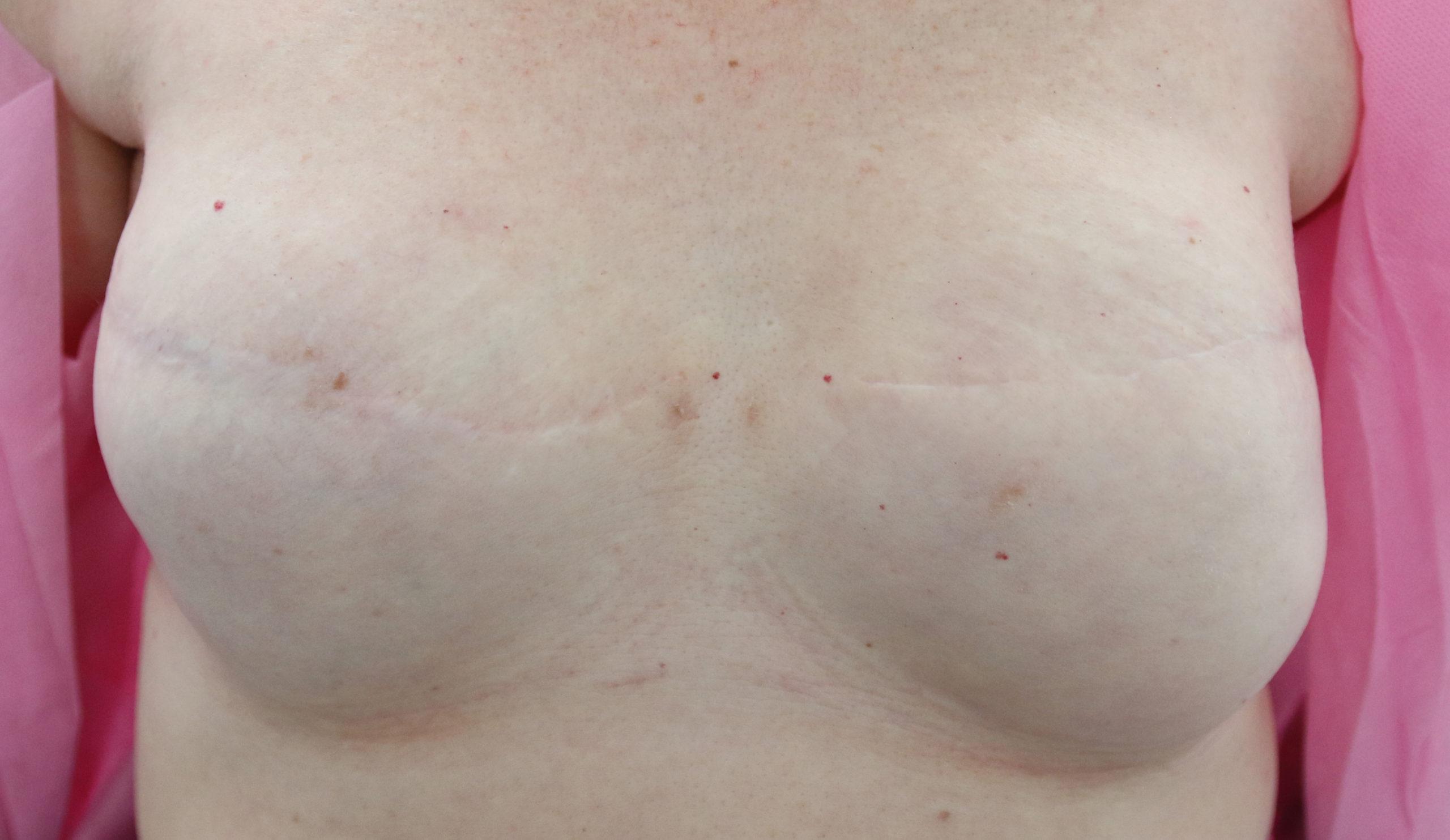 """Rekonstrukcja brodawki piersiowej """"przed"""""""