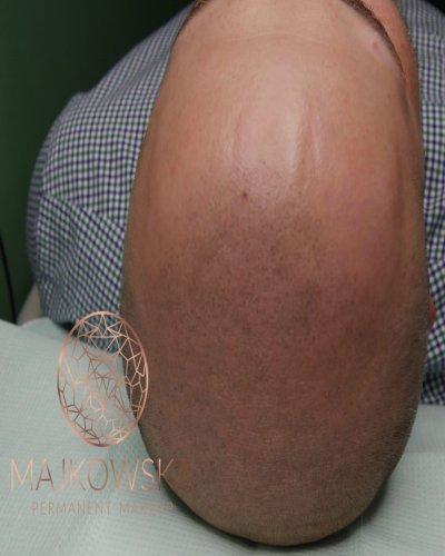 Mikropigmentacja skóry głowy Majkowska