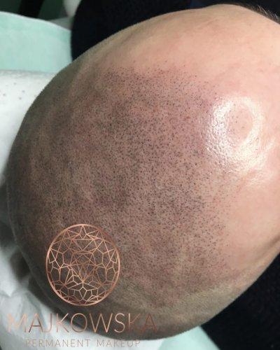 Pigmentacja skóry głowy Poznań Majkowska